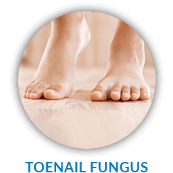 Toenail Fungus Infections in Ennis - Family Foot & Ankle Centers