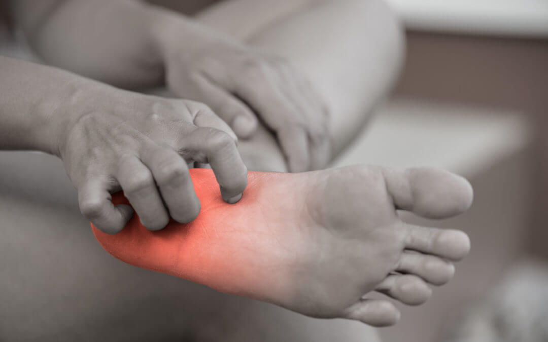 Itching Feet? Five Causes and How to Treat Them