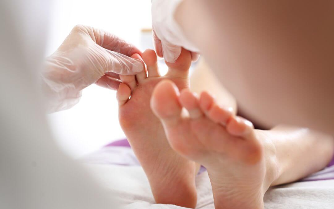 An In Depth Guide To Athletes Foot and How To Treat It
