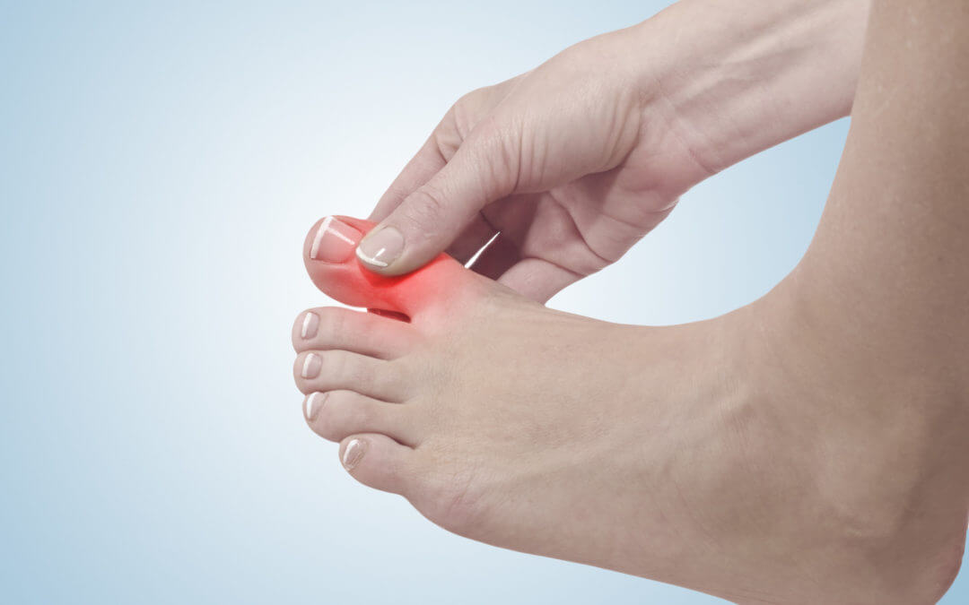 Know the Warning Signs: 5 Symptoms of Arthritis in the Toes