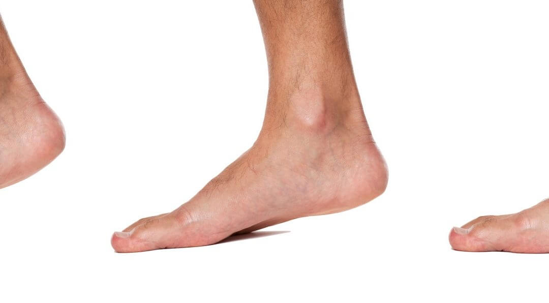 7 Problems that May Arise from Having Flat Feet