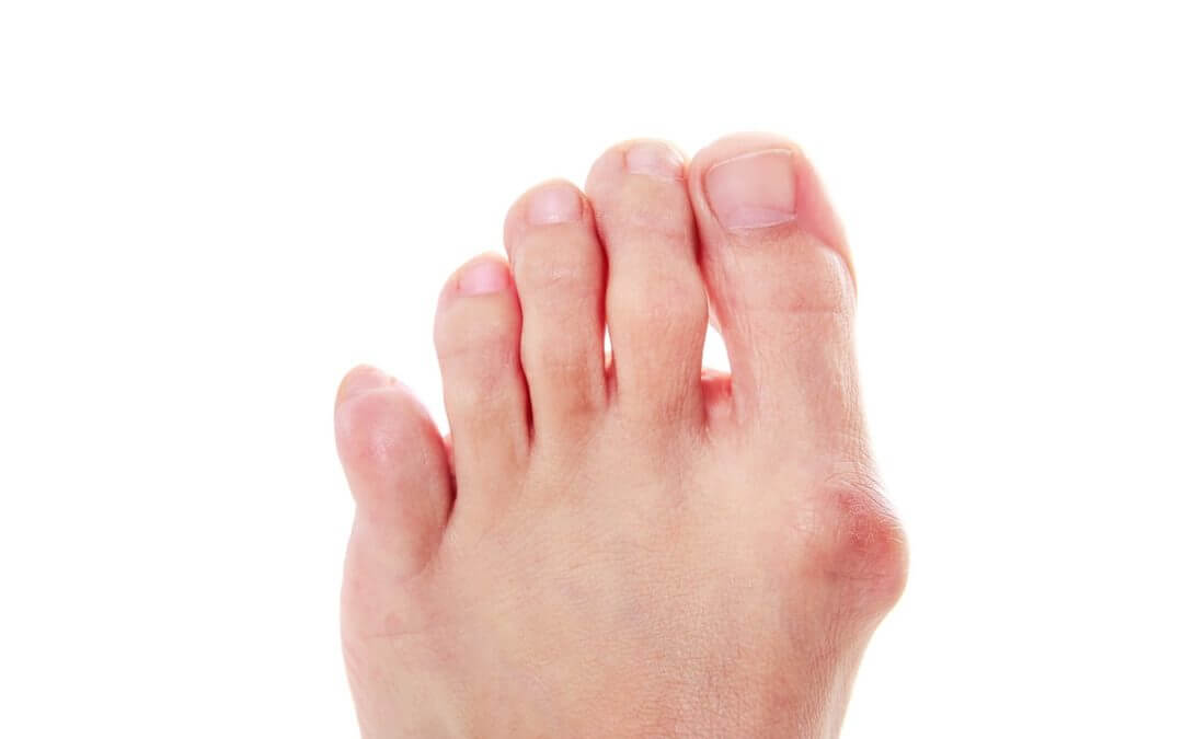 What is a Foot Bunion?