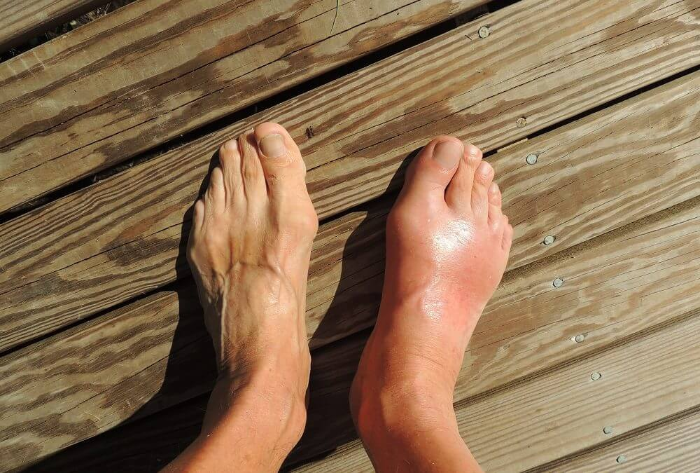 A Gout Guide: What It Is, What Causes It and How to Treat It
