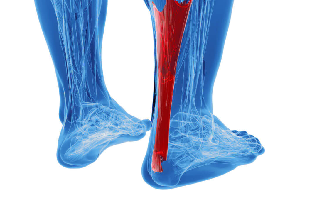 Achilles Tendinitis: What It Is and How to Prevent It