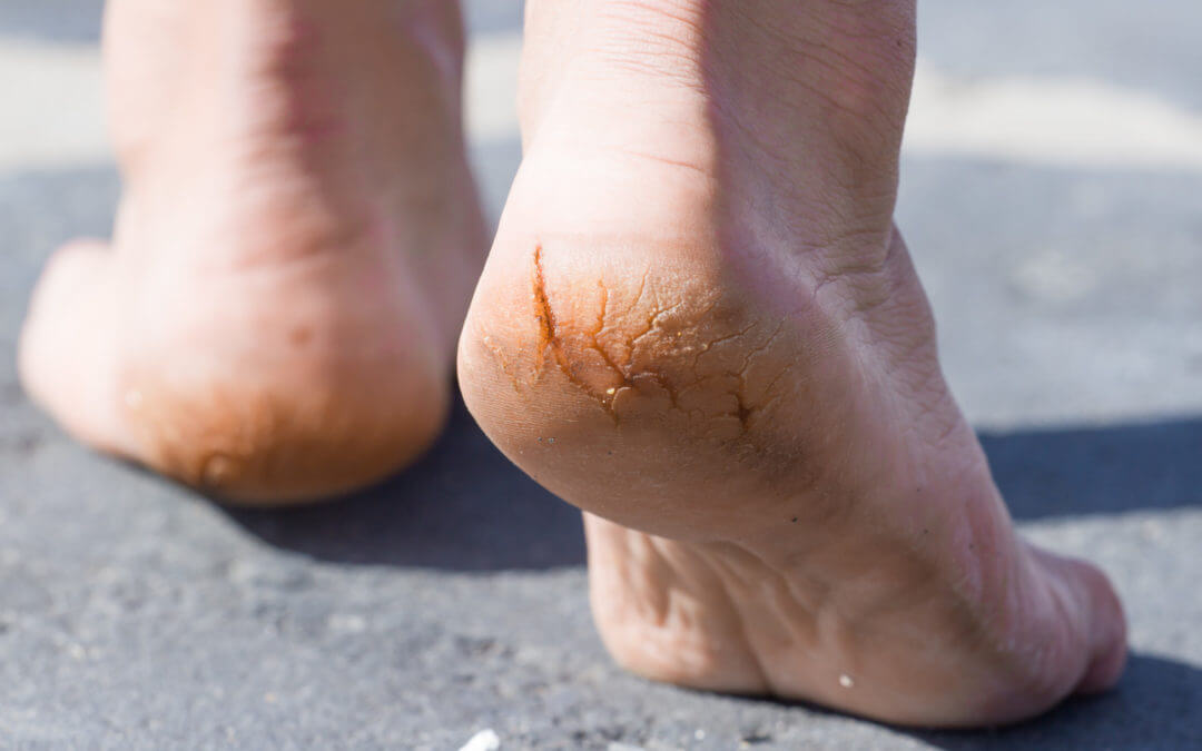 Dry Cracked Heels: The Causes of a Common Foot Condition