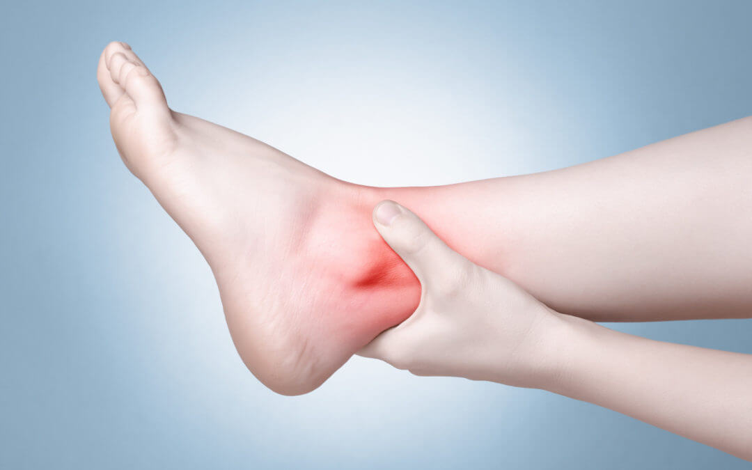 Stress Fractures in Ankles and Feet: Not Just for Athletes