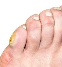 corn toe